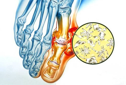 Kaed on haige artriit Vaike harja liigesed haiget