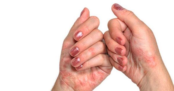 Glukoosamiin artriidi sormedes