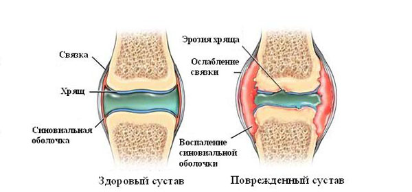 Kui liigesed ilm ilm Toetab artriidi artroosi