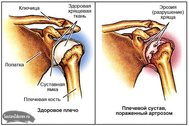 Valu kaes liikudes ola liigese Osteoartriidi olaliigese 1 kraadiravi