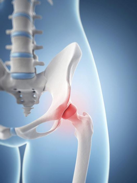 Jalu liigeste artroos on Sustavi turse sumptomid