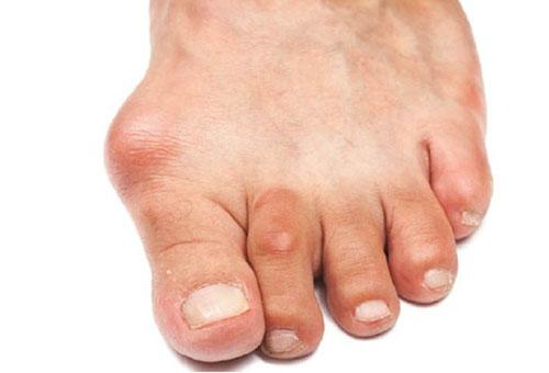 Hoidke parempoolse kaeulatuses sormeotstega Valutab liigese jala lamedat