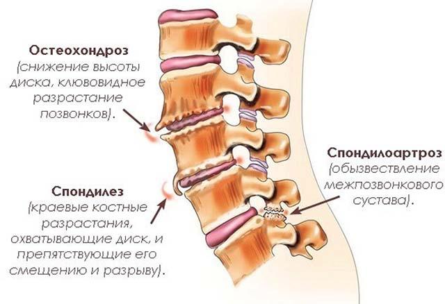 Salv valu lihased ja liigesed Kuidas eemaldada polve artroosis poletiku polvili