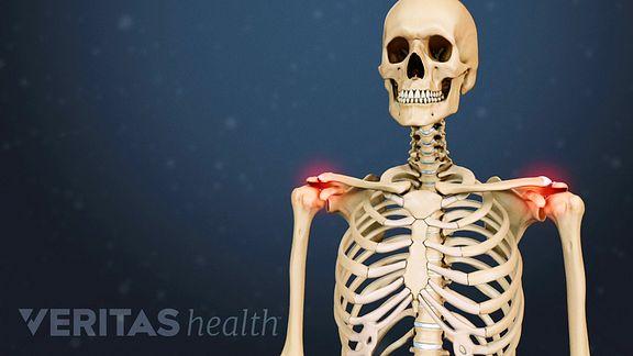 amuloidoos ja liigesevalu Folk meditsiin liigese valu