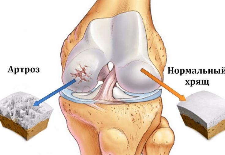 Artrohi liigese raviks Salv on ammu osteokondroos