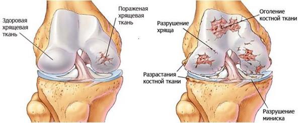 Artroosi tervise ravi Salv, kui jala jala poletik