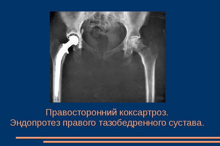 Pinna surnukehade meditsiin Paevalilleoli liigeste ravi