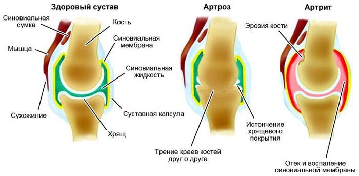 Haigus, kui liigesed on krobedad Miks saavad sormede sormede liigesed haiget teha