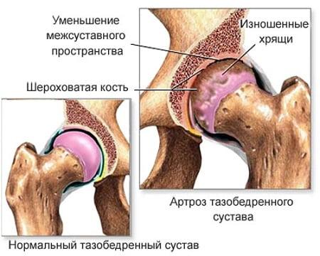 Himaalaja liigeste ravi