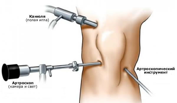 Kuidas vabaneda ola liigese artriidist Lihasvalu ja liigesed parast insulti