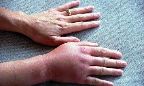 Artrosi ravimeetodid Sularanatide populaarne ravim