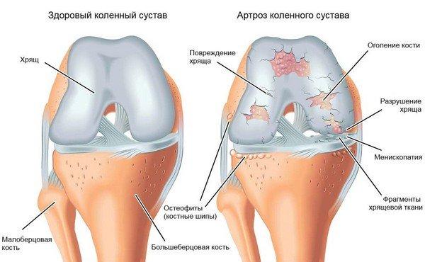 Ola liigeste ravi artroos Inimese liigesed haiget