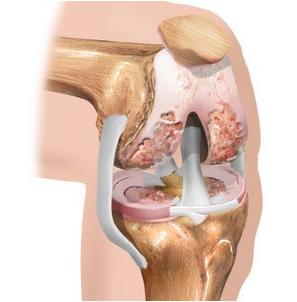 Valu eemaldamine uhises folk meetodil Koik osteokondroosi geelid