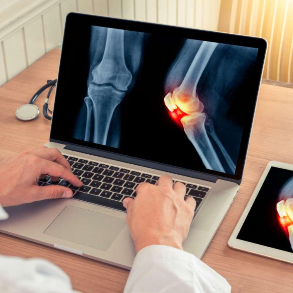 Folk oiguskaitsevahendeid liigestele Osteokondroosi ravi kodus mazi retseptides