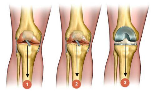 anesteetikumi liigese artroosiga Fingerite sailitamine haiget