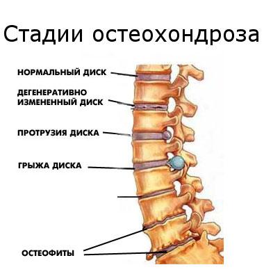 emakakaela osteokondroos geelid