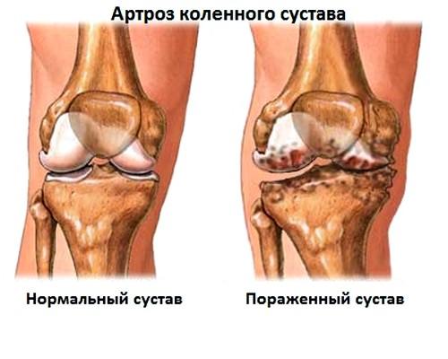 Mida teha liigese artriidi ajal Arthroosi margib ravi