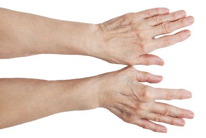 Folk viise artriidi sormede raviks Kergejoustik pusivad probleemid