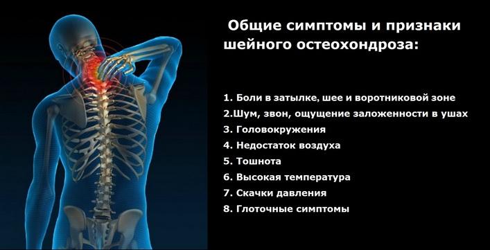 geel alates osteokondroos kaela Millist ravi kuunarli liigese artroosi ajal
