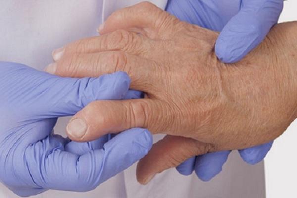 haiget kate suurte sormede liigestele Valutab liitu Mizinzi paremale kaele paindumisel