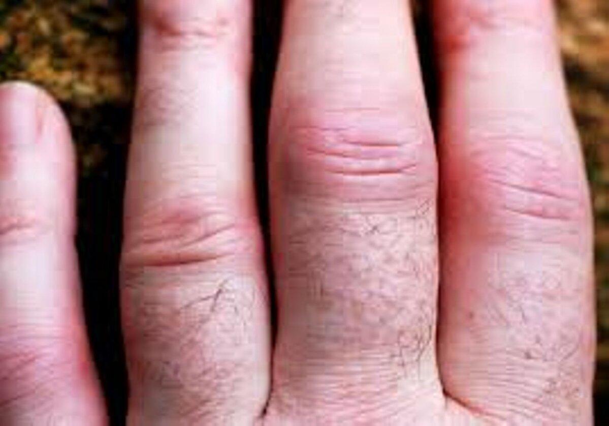 haiget kate suurte sormede liigestele Haige vaikesed kate liigesed