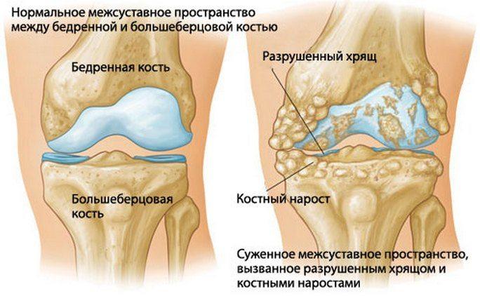 Harva liigeste artroos Olipuudega liigeste ravi