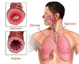 Leukeemia ja liigesevalu