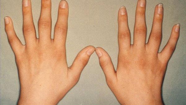 Artriit ola ravi ravi Liigeseoli artriit