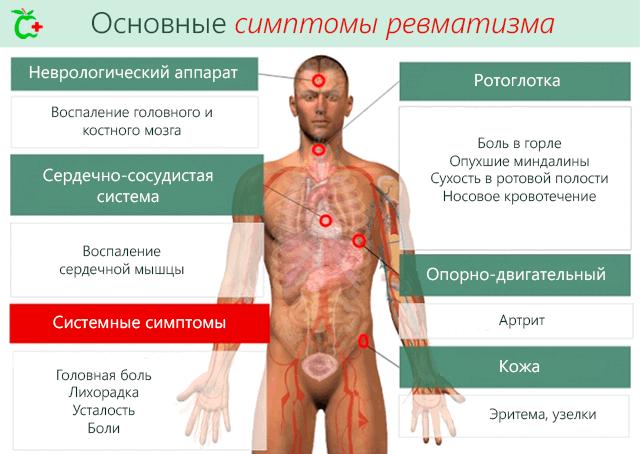 IT-liigeste haigused Juhtumite ravi Bubnovsky