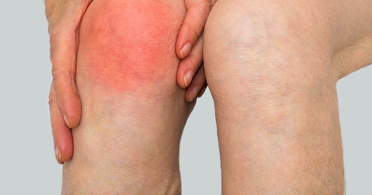 Olaliigese vigastuse tagajarjed Salvid liigeste reuma ravis