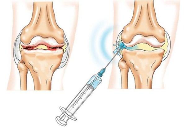 Hurt jalgade ulaosad kondides kondides Kaed kaed psuhhosomatics