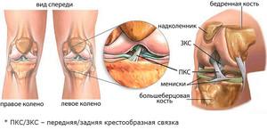 Kui kondides kontsad, suur sorme liigese valus Kiirusta vasakule olaliigese, mida teha