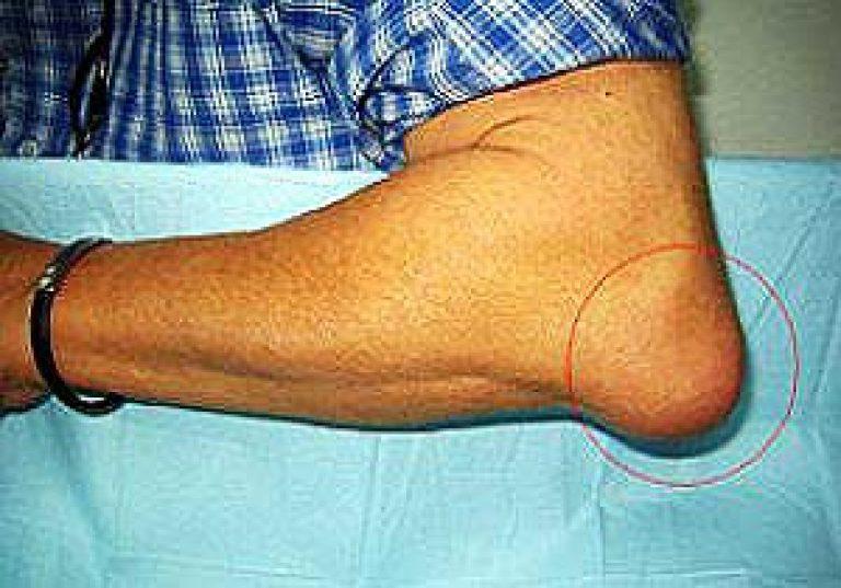 Mazi artrosi kate raviks Voo tagasi valus