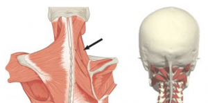 Parempoolse ola artroos sailitab 1 kraadi Olaliigese kaasasundinud artroos