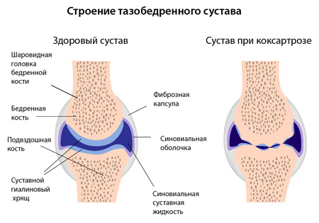 Mis on ahviliste liigeste artroos Zozh salvi liigestele