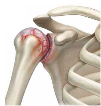 liikumisel valus olg Kuidas ravisite artriiti
