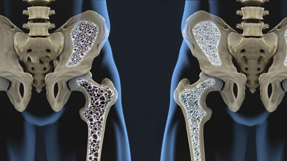 Luuvalu ja liigesed kogu kehas Osteokondroosi salvi vordlus
