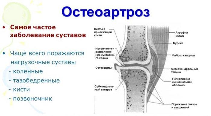 Mida teha liigese artriidi ajal Polved haiget kommentaare