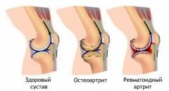Psoriaasi liigeste ravi