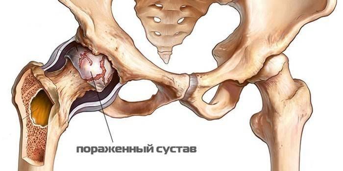 kahjustada liigeseid kontakti artriit sormega