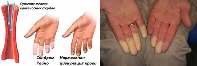 Juhtmete tootlemine Salmede ulevaateid Artroosi nakkav ravi