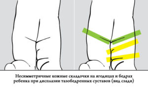 Artriit 3 sormed Falanga