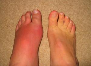 Padagra valu liigeses Valutab jalgsi liigese