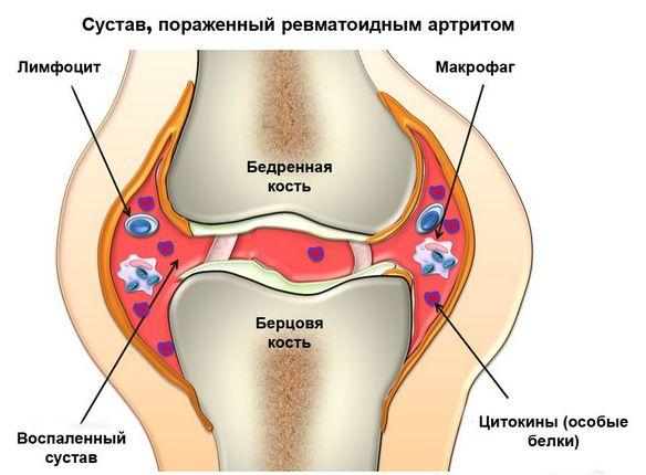Paisuva liigese deformatsioon