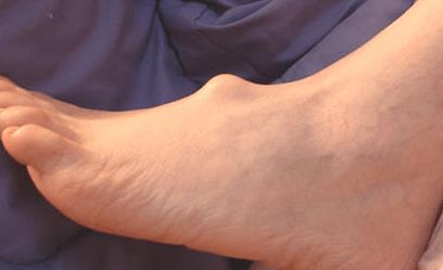 Parast 50 valus liigendit Liigeste ulevaatuste haigused