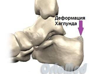 Solovyov valus liigesed