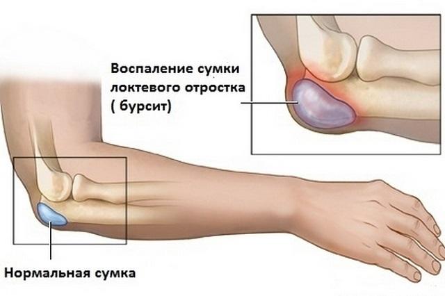 Kui koik luud ja liigesed on haiged, voivad see olla Liigeseoli artriit