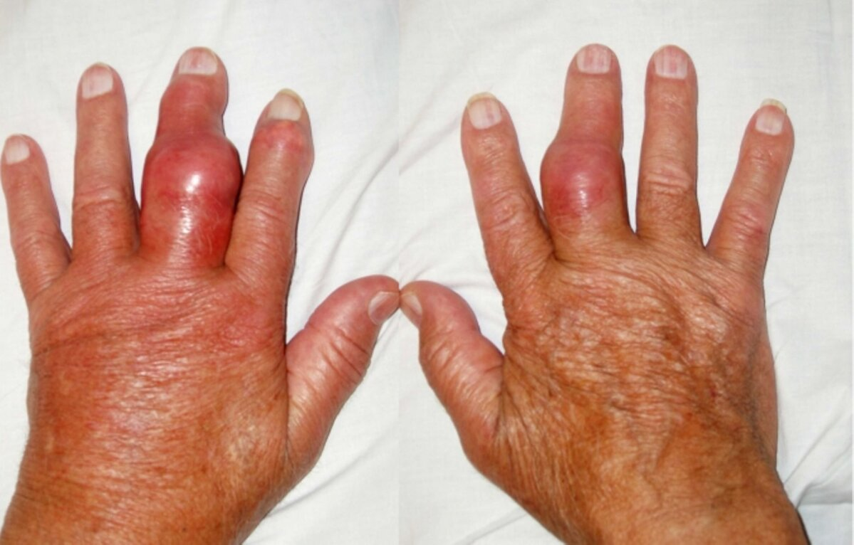 turse sormed valus liigesed