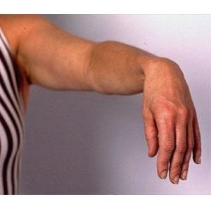 Pilates uhise haigusega Allergiline artroosi ravi