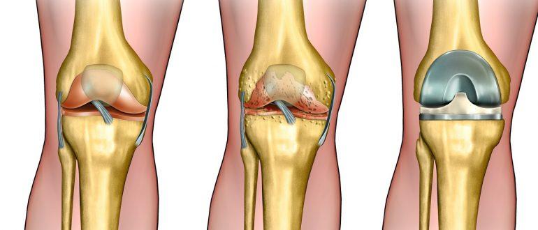 Kuidas ravida valu polveliigendis folk oiguskaitsevahendeid Artriidi artroosi ravi pohjus